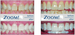 The results of Zoom! Whitening Treatment at lion dental centre dentist stourbridge